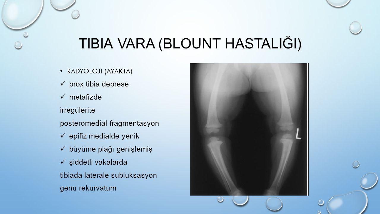 Tibia vara (Blount hastaliği)