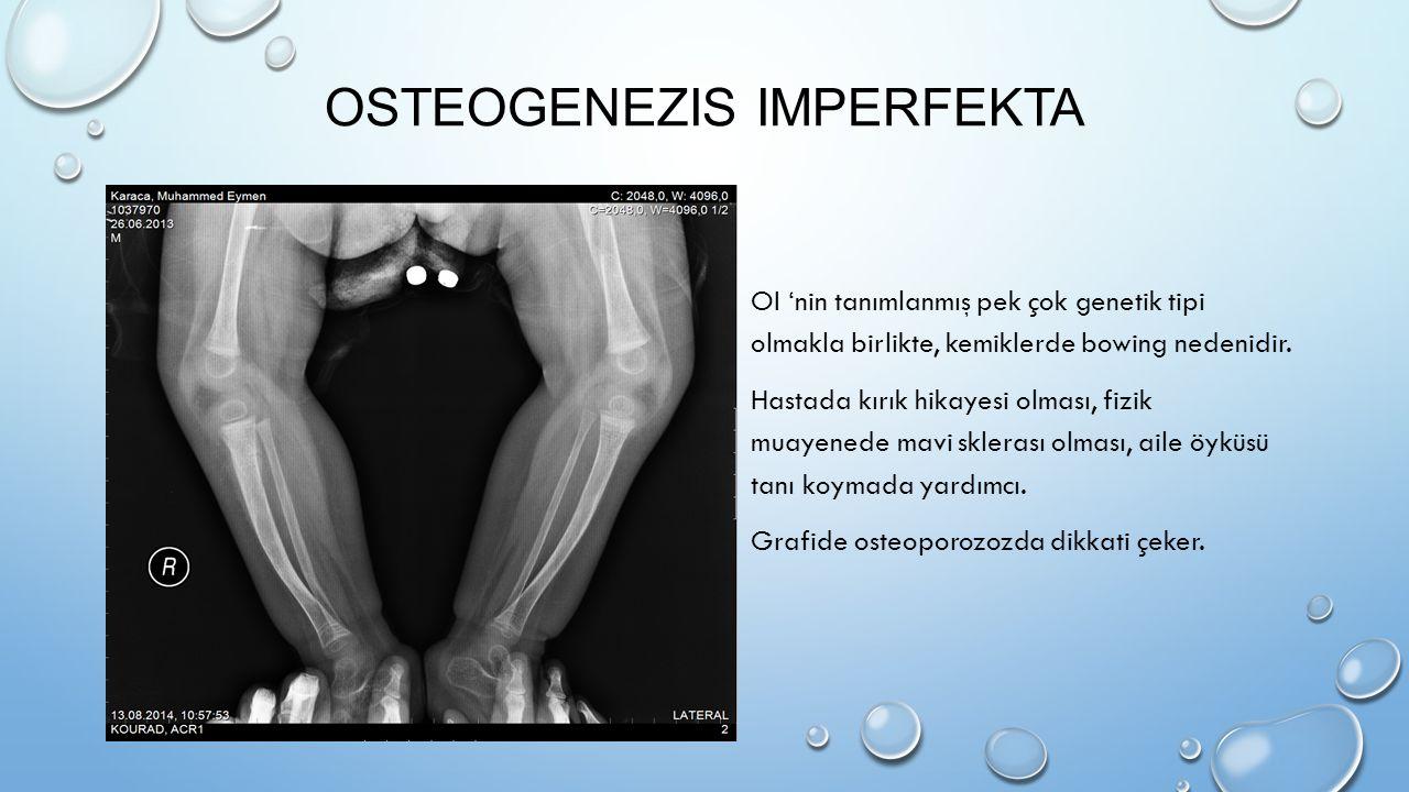 Osteogenezis imperfekta