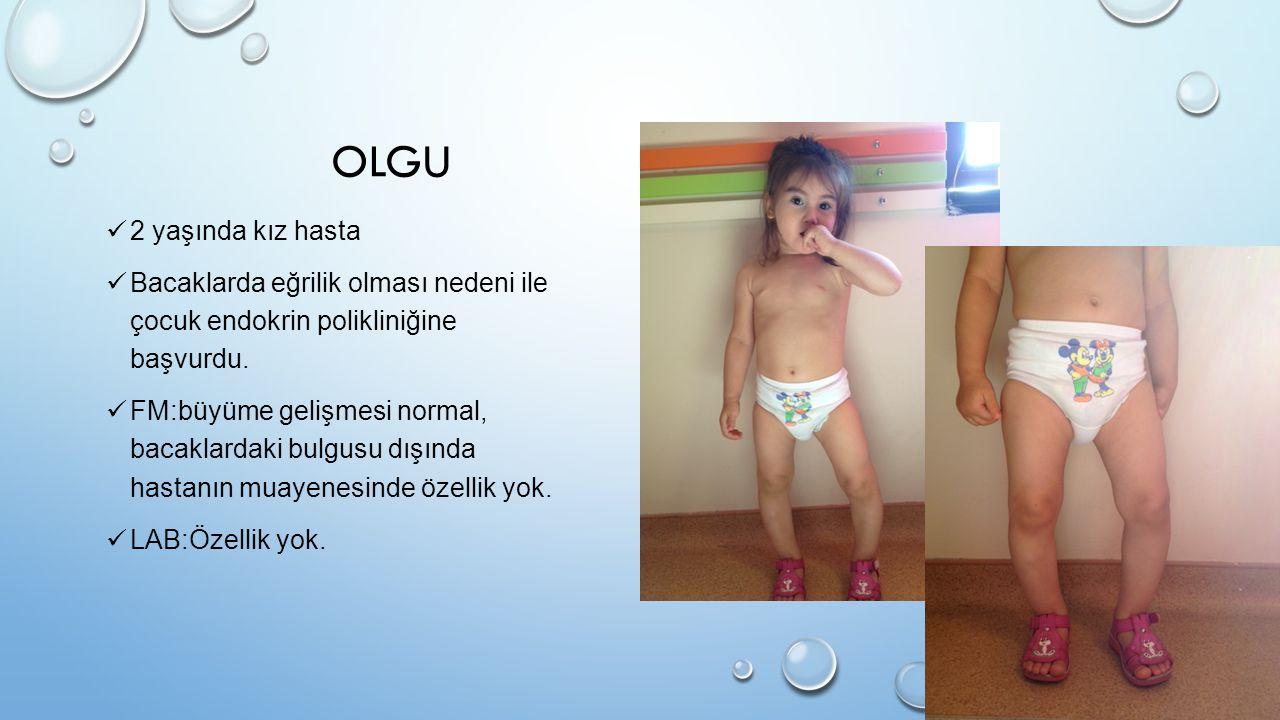 OLGU 2 yaşında kız hasta. Bacaklarda eğrilik olması nedeni ile çocuk endokrin polikliniğine başvurdu.