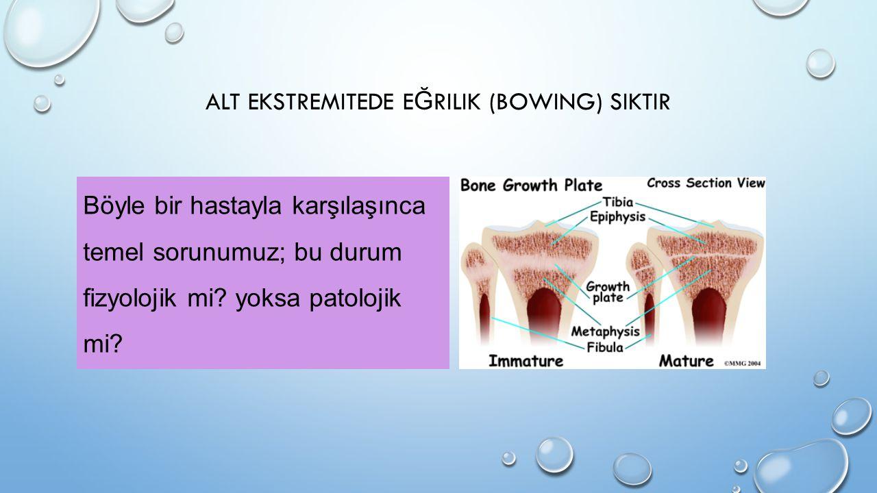 Alt ekstremitede eğrilik (bowing) siktir