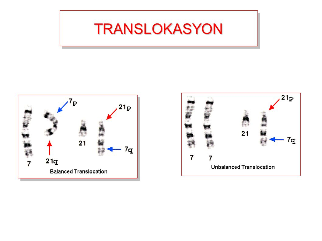 TRANSLOKASYON