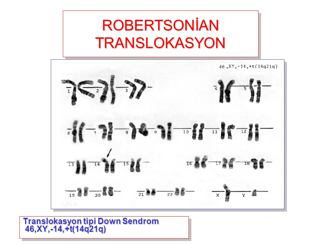 ROBERTSONİAN TRANSLOKASYON