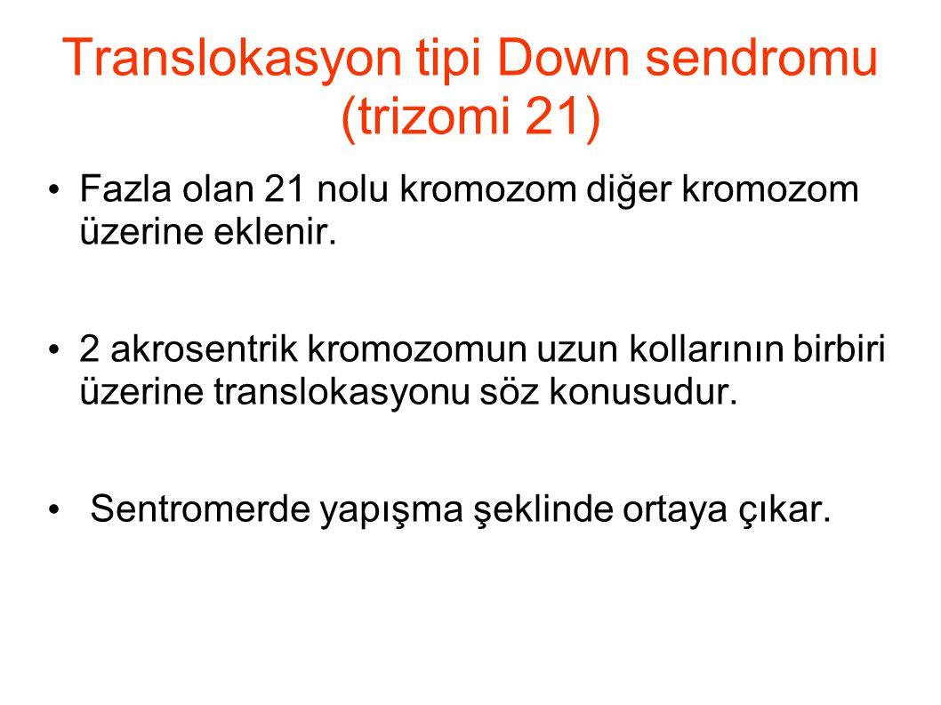 Translokasyon tipi Down sendromu (trizomi 21)