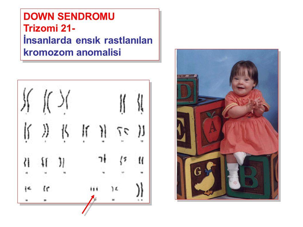 DOWN SENDROMU Trizomi 21- İnsanlarda ensık rastlanılan kromozom anomalisi