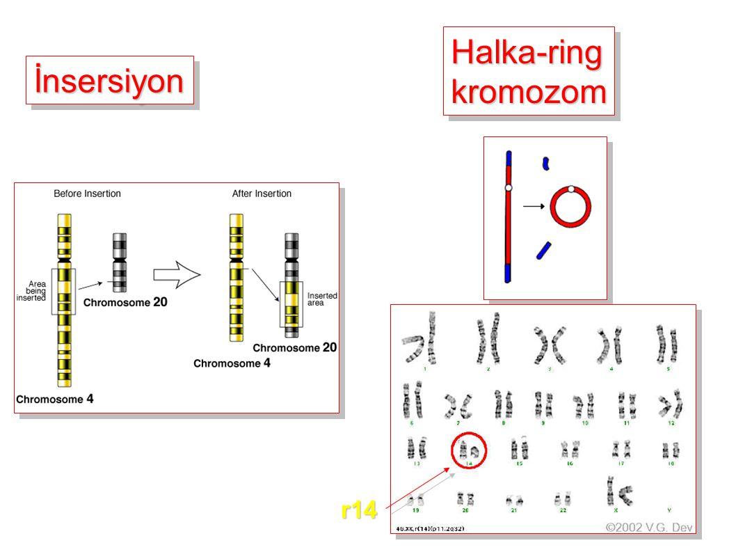 Halka-ring kromozom İnsersiyon r14
