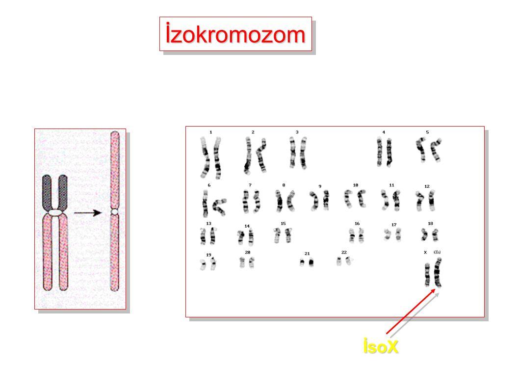 İzokromozom İsoX