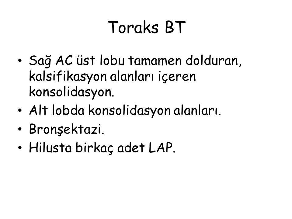 Toraks BT Sağ AC üst lobu tamamen dolduran, kalsifikasyon alanları içeren konsolidasyon. Alt lobda konsolidasyon alanları.
