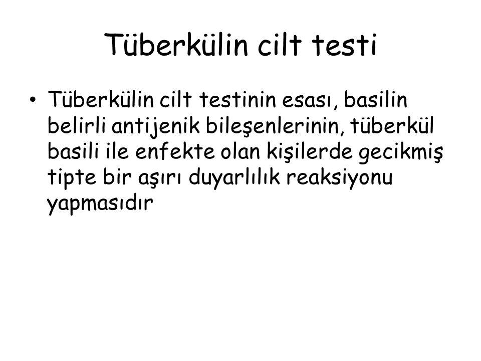 Tüberkülin cilt testi