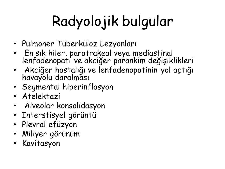 Radyolojik bulgular Pulmoner Tüberküloz Lezyonları