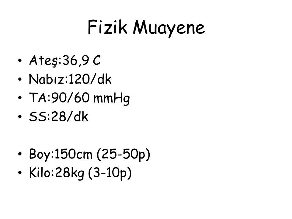 Fizik Muayene Ateş:36,9 C Nabız:120/dk TA:90/60 mmHg SS:28/dk