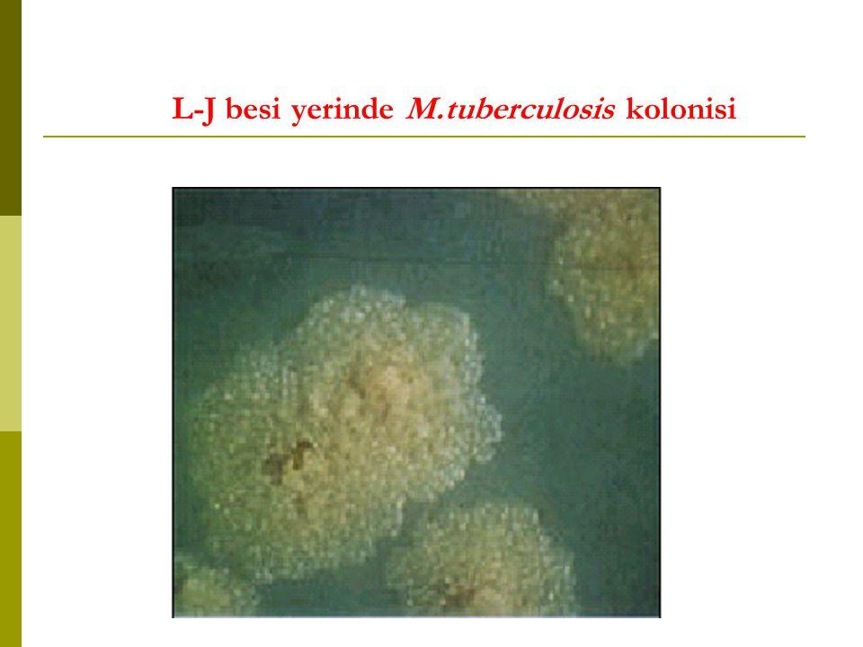 L-J besi yerinde M.tuberculosis kolonisi
