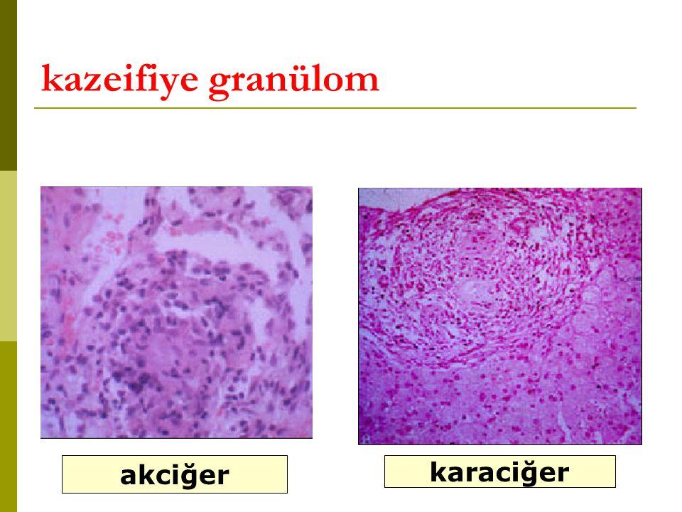 kazeifiye granülom akciğer karaciğer