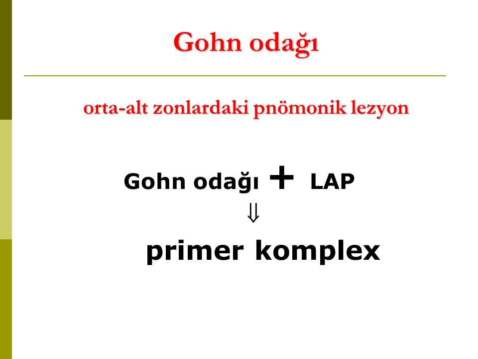 Gohn odağı orta-alt zonlardaki pnömonik lezyon