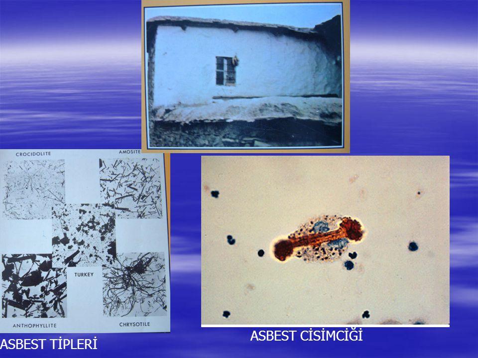 ASBEST CİSİMCİĞİ ASBEST TİPLERİ