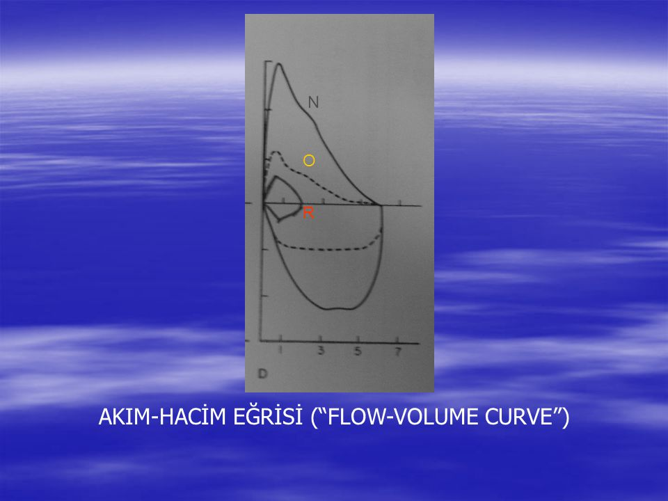 AKIM-HACİM EĞRİSİ ( FLOW-VOLUME CURVE )
