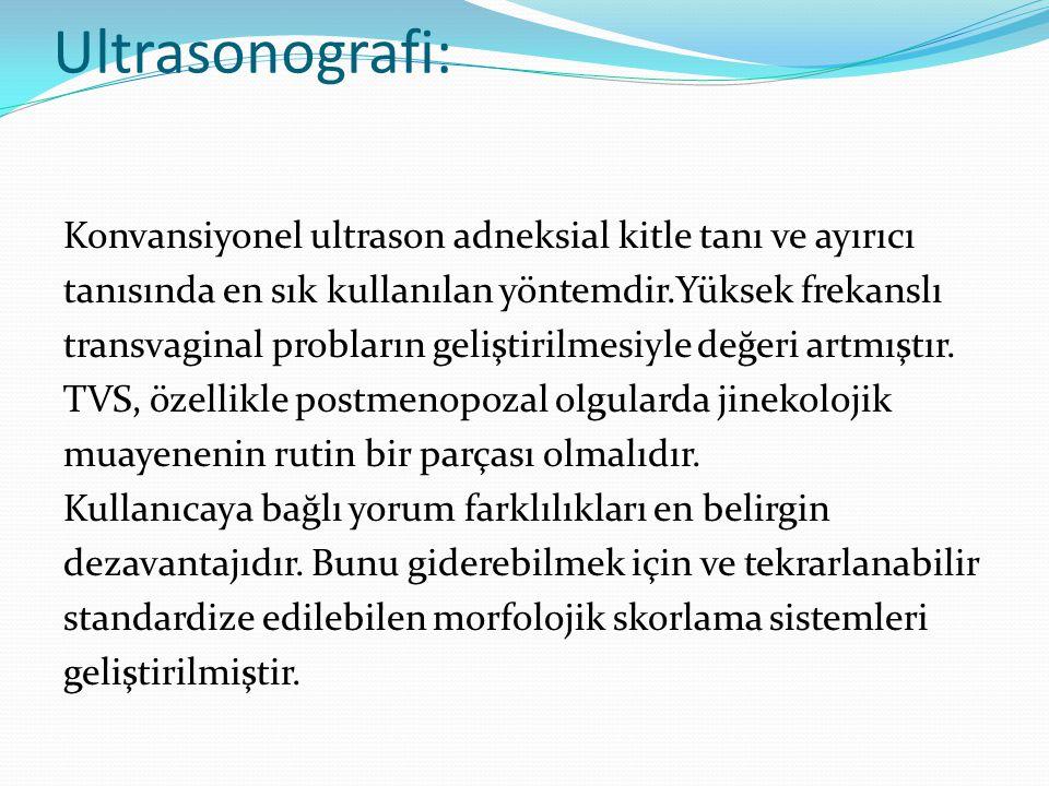 Ultrasonografi: