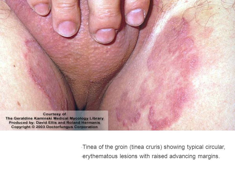 Tinea of the groin (tinea cruris) showing typical circular,