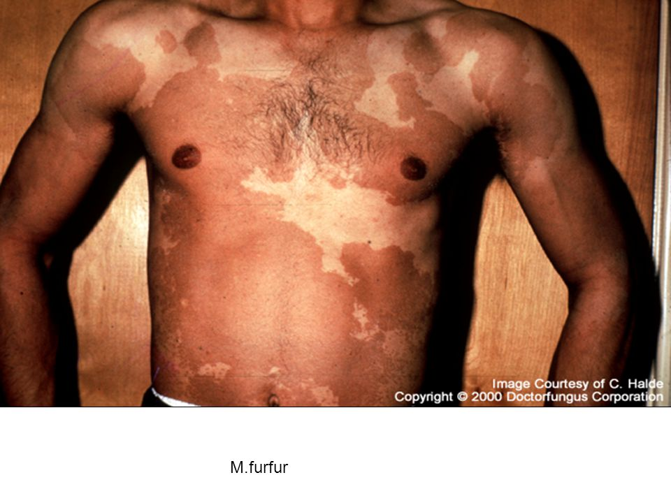 M.furfur