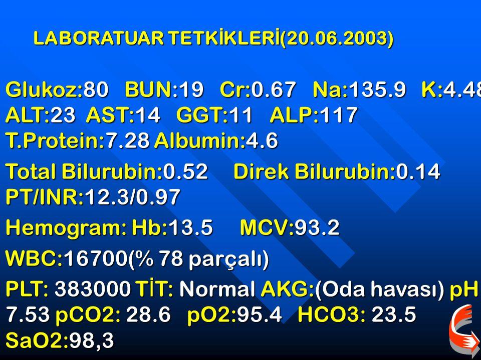 Total Bilurubin:0.52 Direk Bilurubin:0.14 PT/INR:12.3/0.97