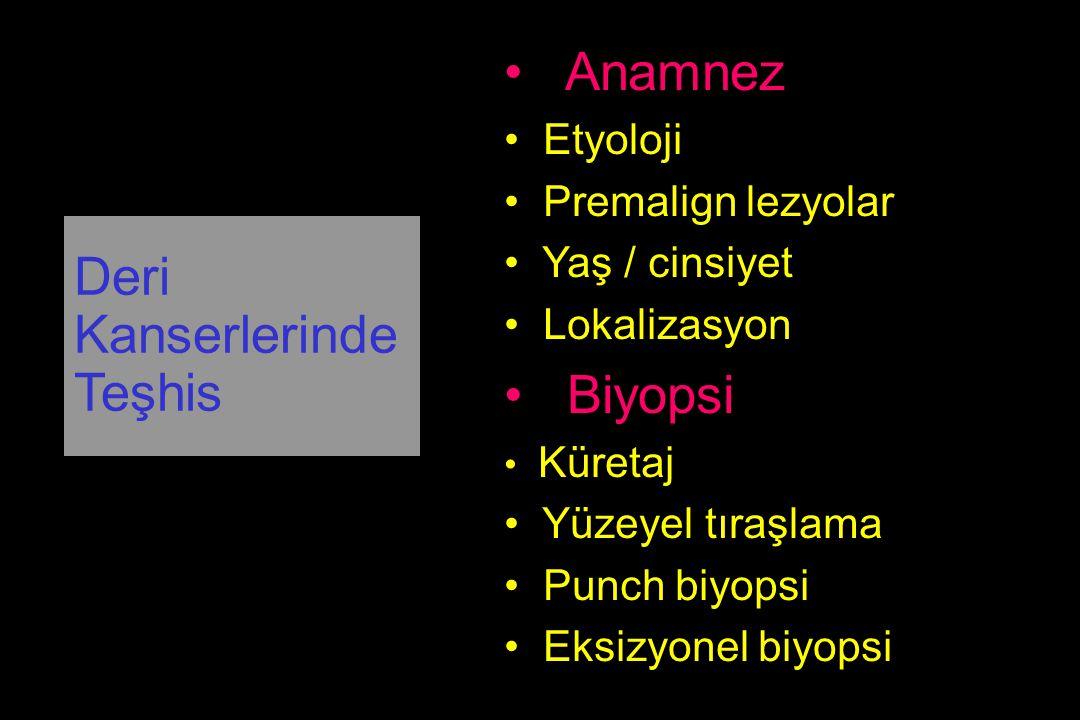 Anamnez Biyopsi Deri Kanserlerinde Teşhis Etyoloji Premalign lezyolar