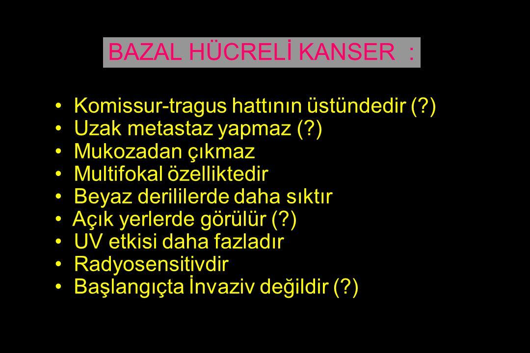 BAZAL HÜCRELİ KANSER : Komissur-tragus hattının üstündedir ( )