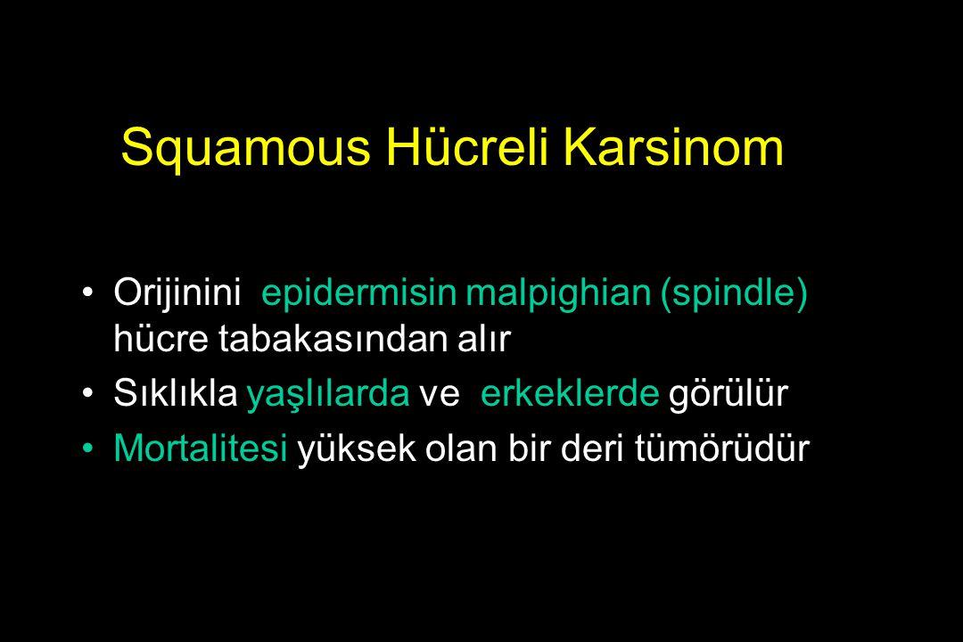 Squamous Hücreli Karsinom