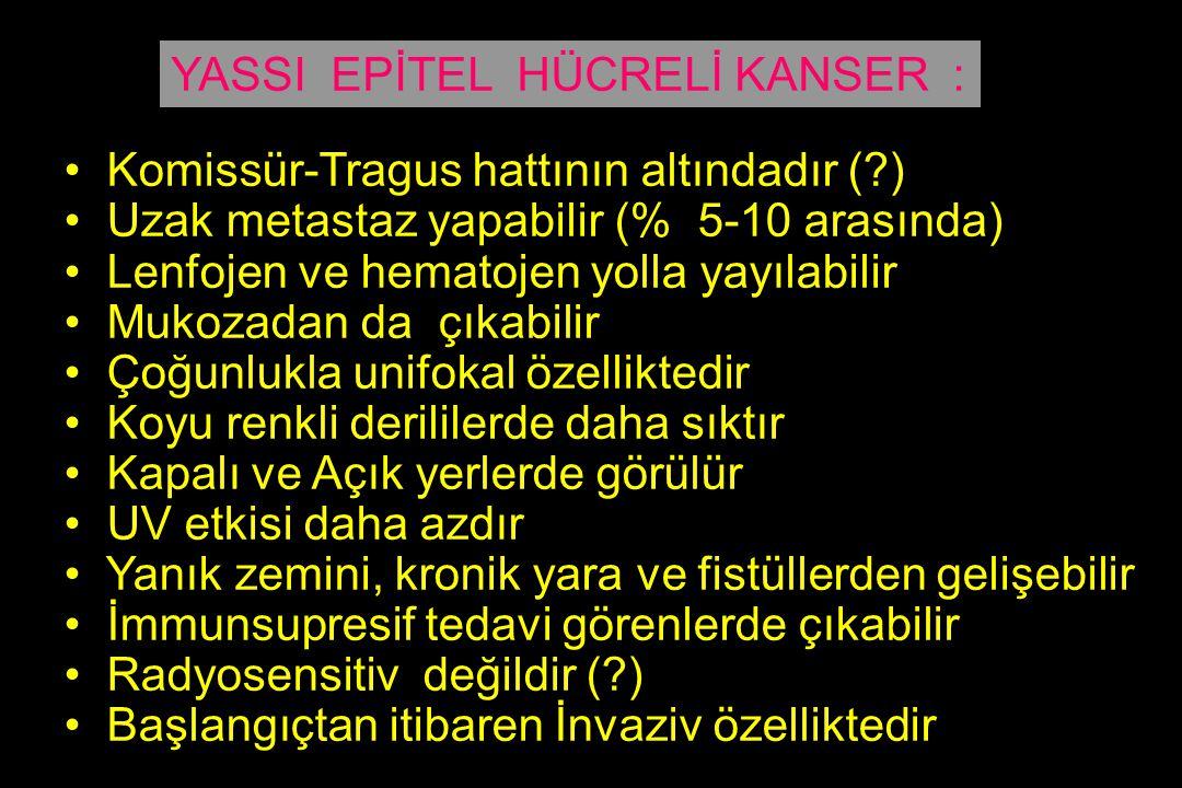 YASSI EPİTEL HÜCRELİ KANSER :