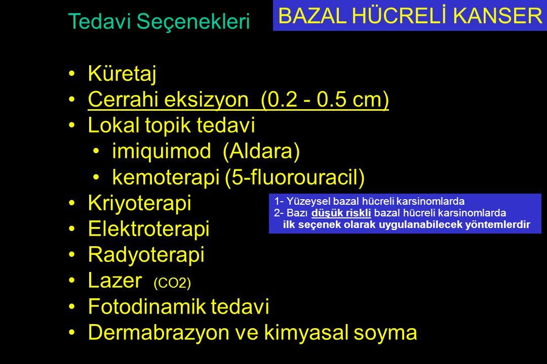 Cerrahi eksizyon (0.2 - 0.5 cm) Lokal topik tedavi imiquimod (Aldara)