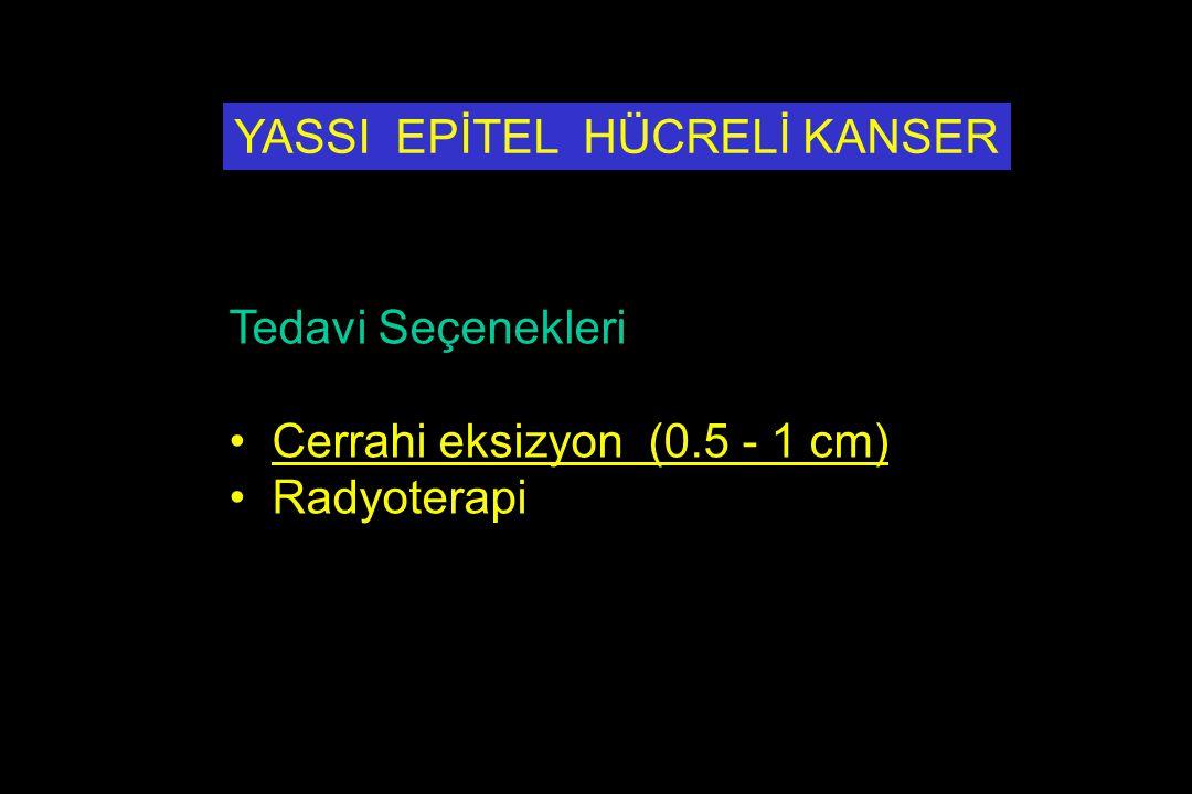 YASSI EPİTEL HÜCRELİ KANSER