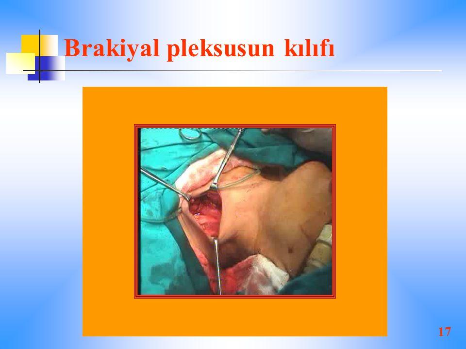 Brakiyal pleksusun kılıfı