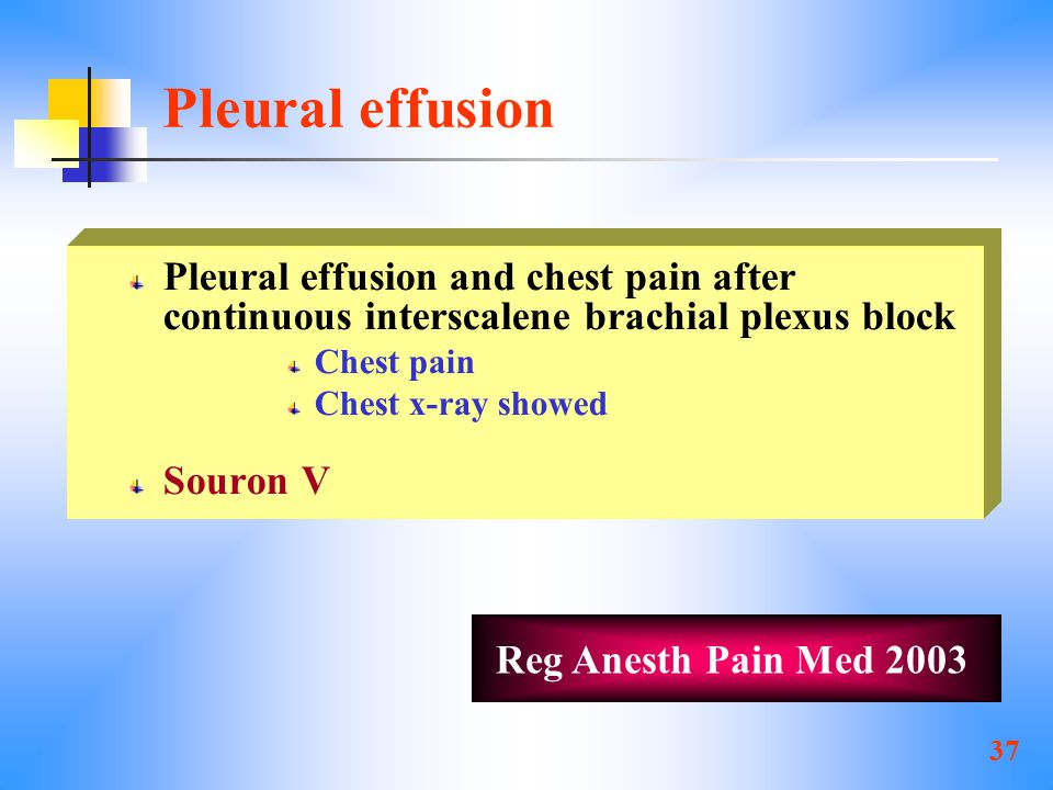 Pleural effusion Pleural effusion and chest pain after continuous interscalene brachial plexus block.