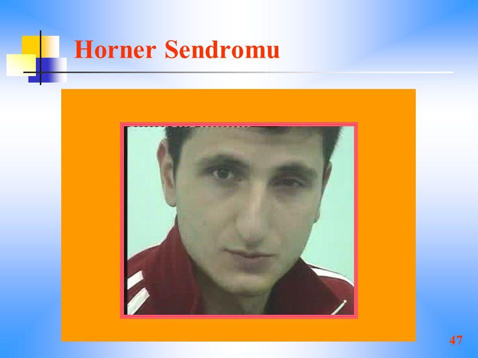 Horner Sendromu