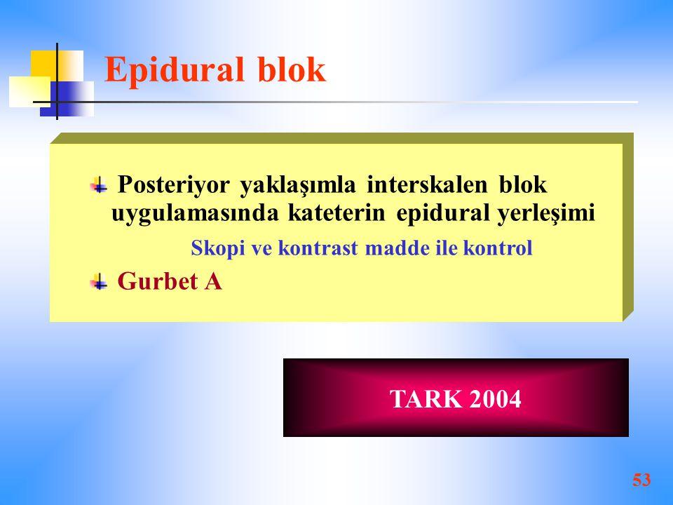 Epidural blok Posteriyor yaklaşımla interskalen blok uygulamasında kateterin epidural yerleşimi. Skopi ve kontrast madde ile kontrol.