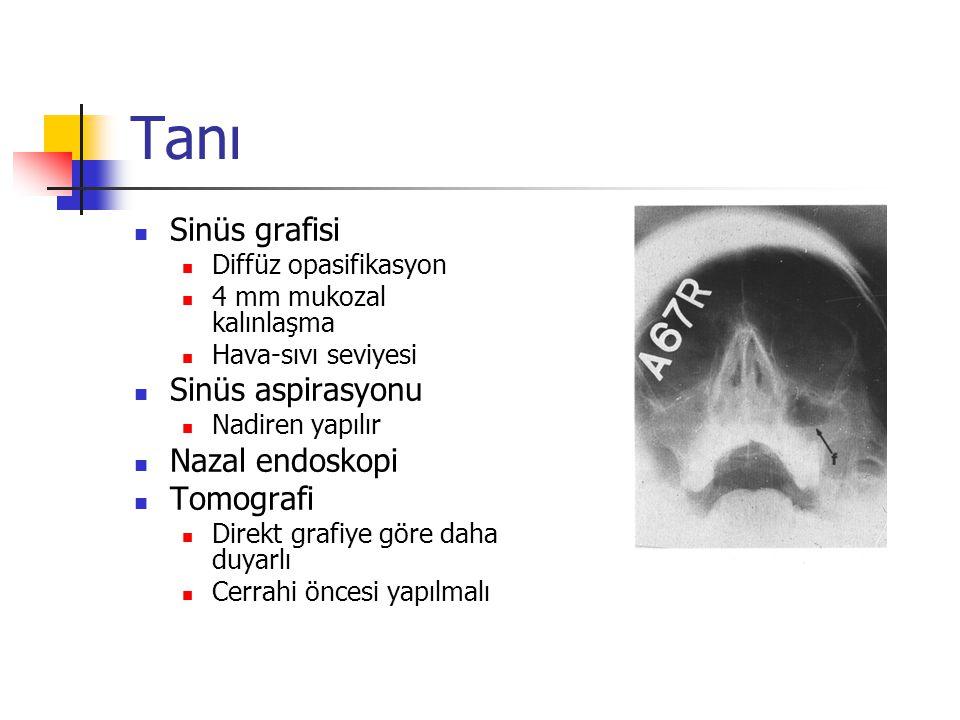 Tanı Sinüs grafisi Sinüs aspirasyonu Nazal endoskopi Tomografi