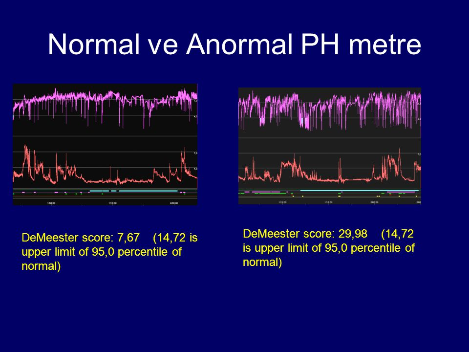 Normal ve Anormal PH metre