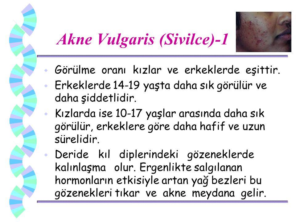 Akne Vulgaris (Sivilce)-1