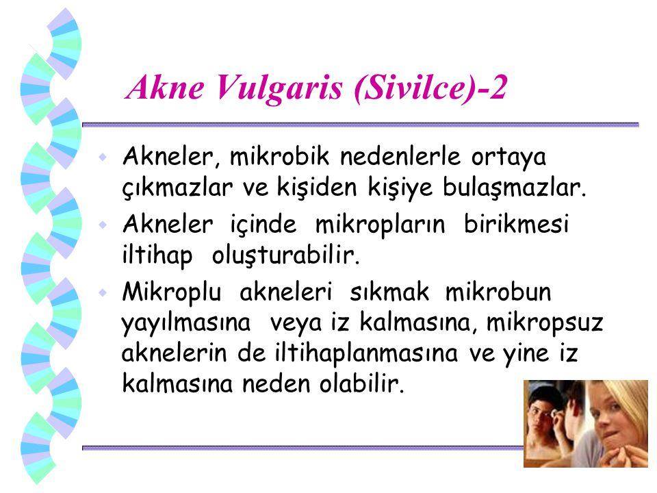 Akne Vulgaris (Sivilce)-2