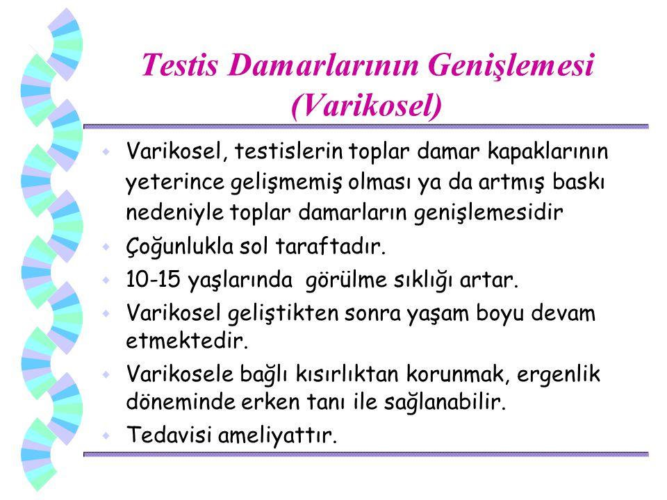 Testis Damarlarının Genişlemesi (Varikosel)