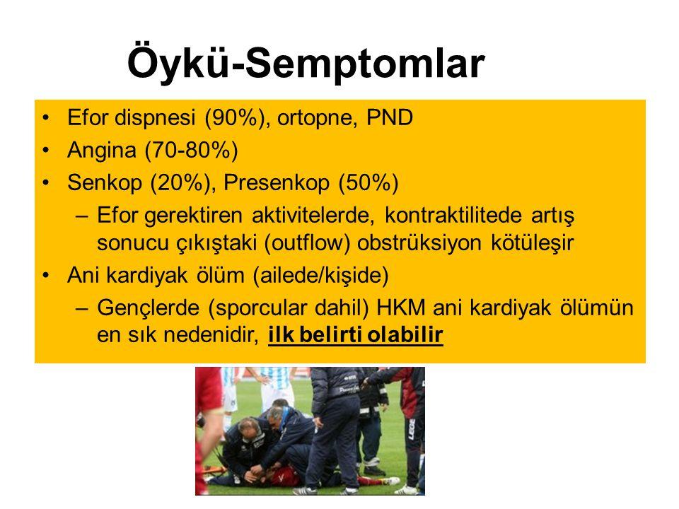 Öykü-Semptomlar Efor dispnesi (90%), ortopne, PND Angina (70-80%)