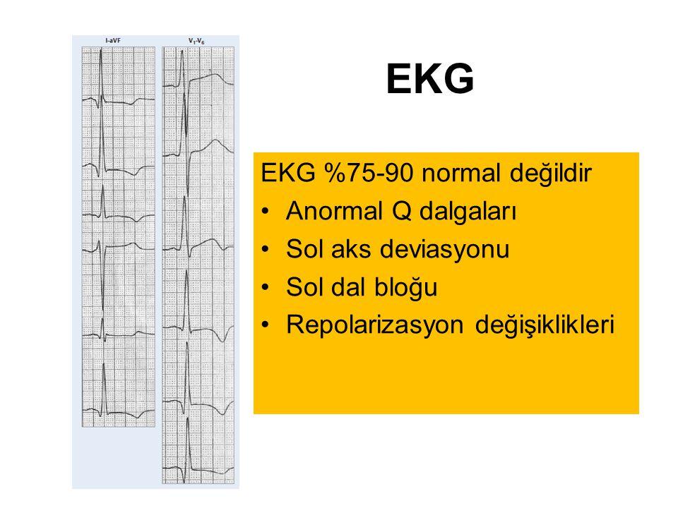 EKG EKG %75-90 normal değildir Anormal Q dalgaları Sol aks deviasyonu