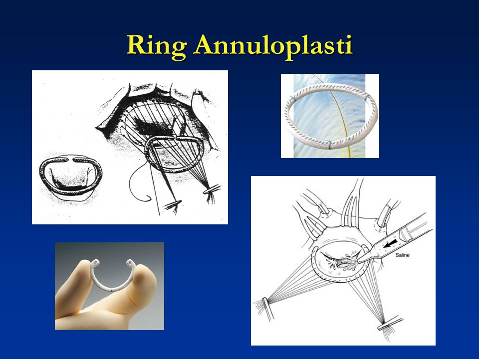 Ring Annuloplasti