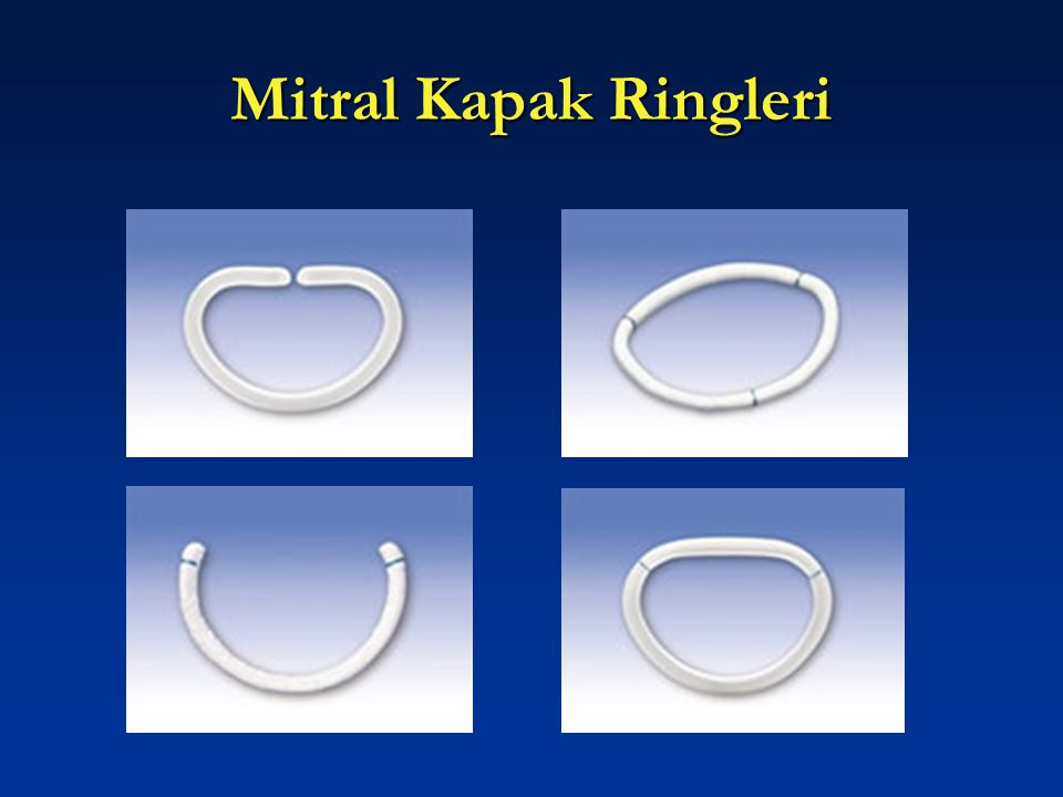 Mitral Kapak Ringleri