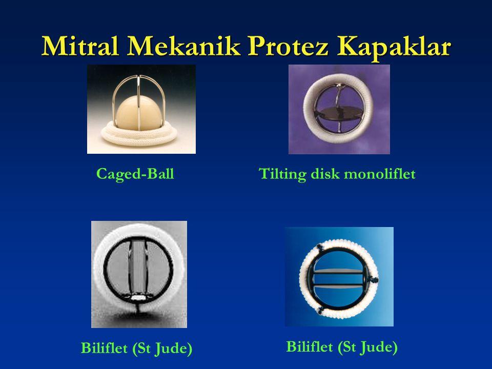 Mitral Mekanik Protez Kapaklar