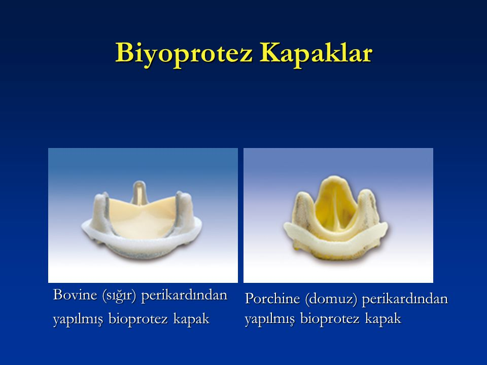 Biyoprotez Kapaklar Bovine (sığır) perikardından