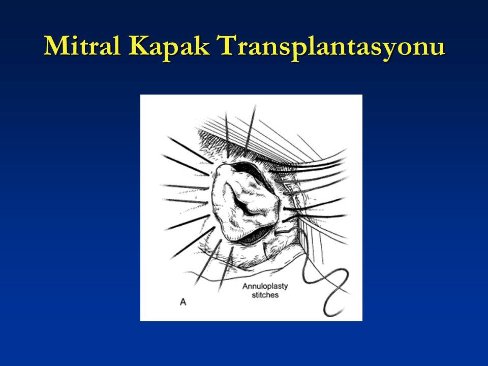 Mitral Kapak Transplantasyonu