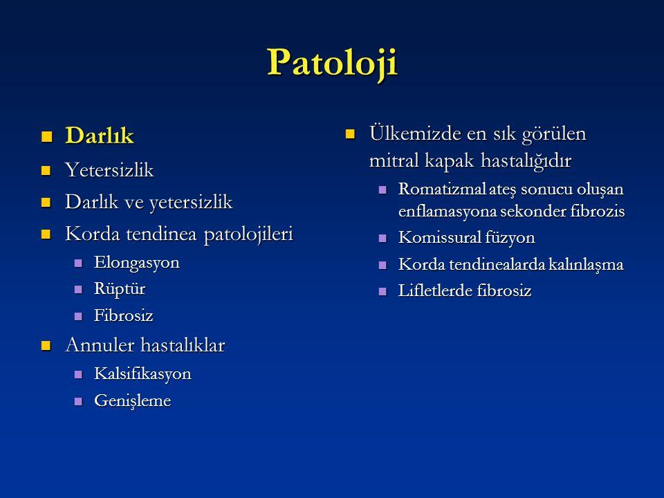 Patoloji Darlık Ülkemizde en sık görülen mitral kapak hastalığıdır