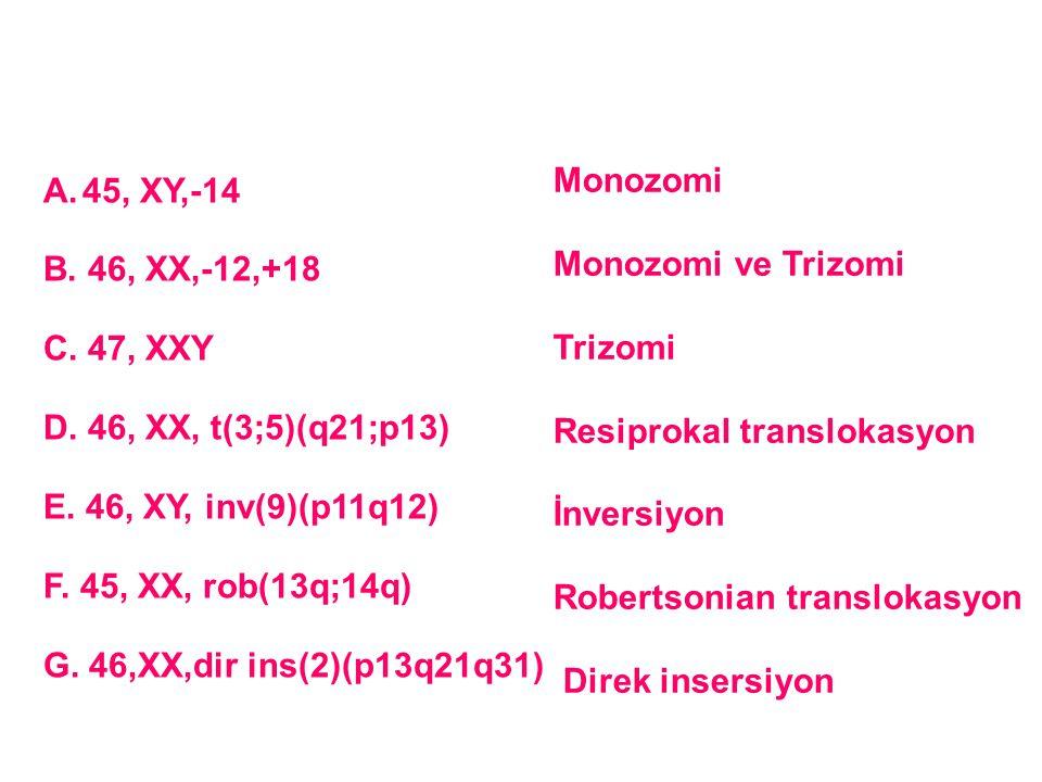 45, XY,-14 B. 46, XX,-12,+18. C. 47, XXY. D. 46, XX, t(3;5)(q21;p13) E. 46, XY, inv(9)(p11q12) F. 45, XX, rob(13q;14q)