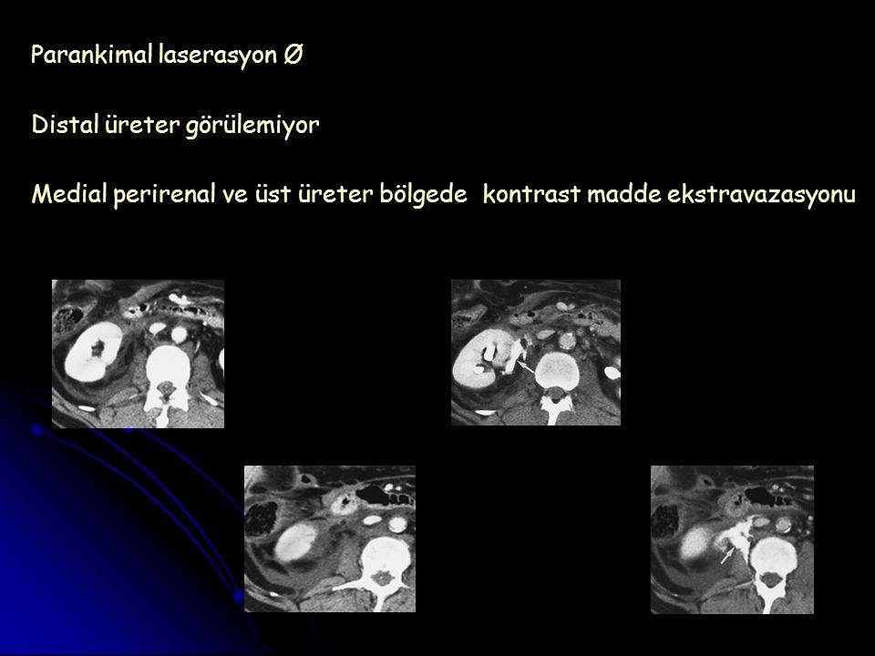 Parankimal laserasyon Ø