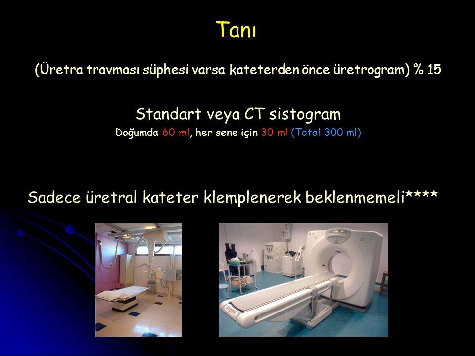 Tanı Standart veya CT sistogram