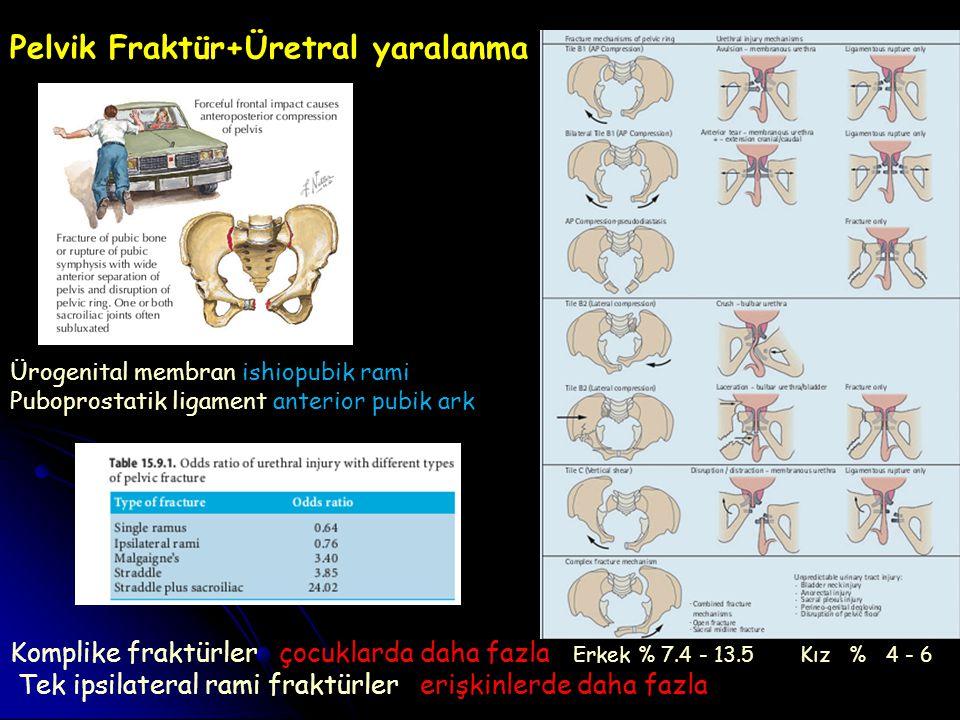 Pelvik Fraktür+Üretral yaralanma